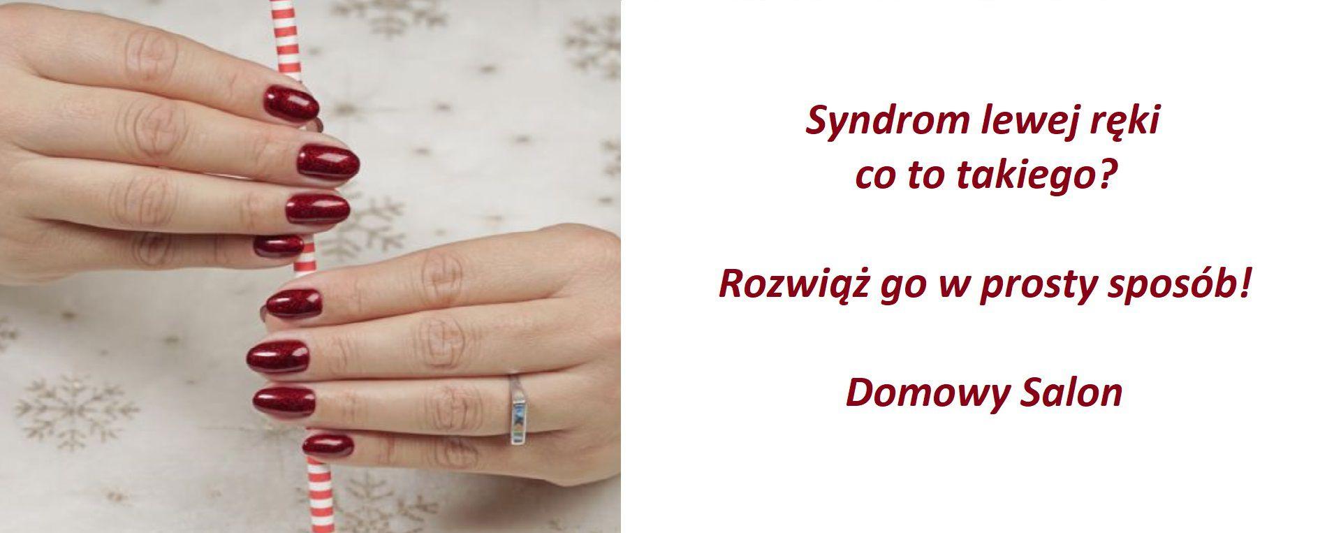 Syndrom lewej ręki – spotkajmy się przy hybrydzie